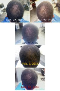 curtis_regrowth_from_monat