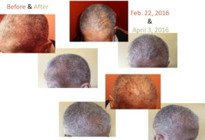monat_hair_regrowth-norma